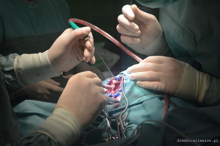 Neurochirurgiczny GPS